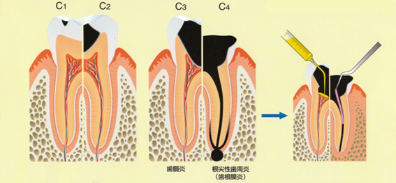 C0:歯質の不透明感や白斑・色素沈着が認められるう窩が確認できない状態 C1 :エナメル質に進行したう蝕。処置次第でC0に戻ること可能性もある。 C2 :象牙室に達したう蝕 C3 :歯の神経