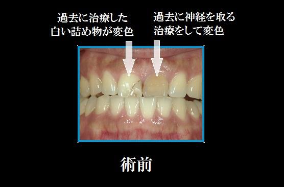 上前歯部術前.jpg