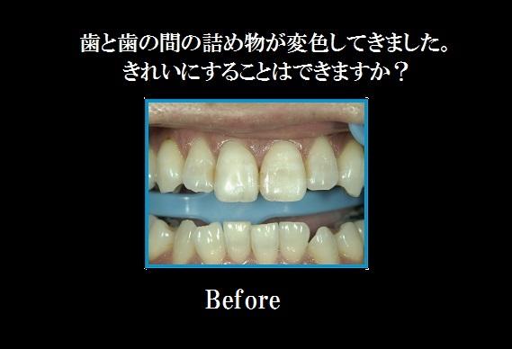 前歯部CR術前.jpg