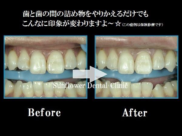 前歯CR症例.jpg
