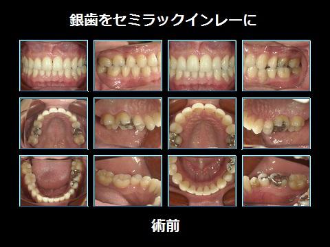 銀歯をセラミックに術前.jpg