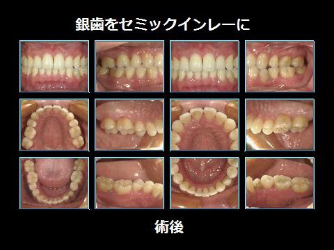 銀歯をセラミックに術後.jpg